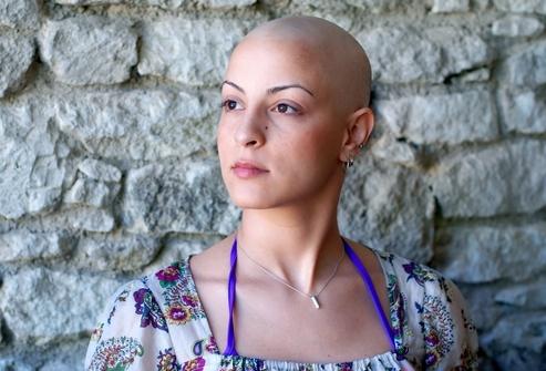 Всегда ли выпадают волосы после химиотерапии, лучевой терапии: когда и почему это происходит, у всех ли, что делать, как избежать, после какого курса начинается облысение