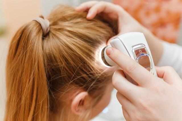 Причины перхоти на голове у женщин: от чего и почему появляется, как бороться, как избавиться от себореи на коже головы