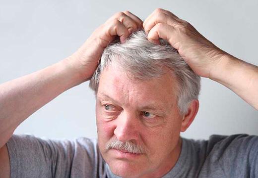 Прыщи на голове в волосах: у мужчин и женщин, лечение гнойников на коже затылка и не только, причины почему появляются прыщики, которые чешутся у взрослого, фото