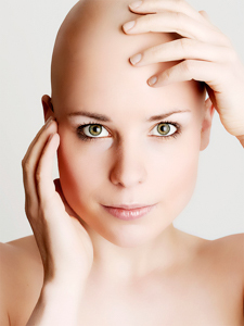 Тотальная алопеция и другие виды облысения (универсальная, субтотальная, диффузная): у женщин и мужчин, лечение, симптомы, причины
