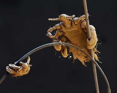 Вши на ресницах и на бровях: лечение, как избавиться от гнид и ресничных вшей, от чего они могут появиться
