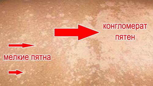 Волосяной лишай на голове: фото различных видов (отрубевидный, красный), лечение, видео