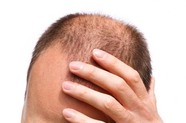 Генеролон для роста волос: состав спрея и как применять, побочные эффекты, отзывы о использовании